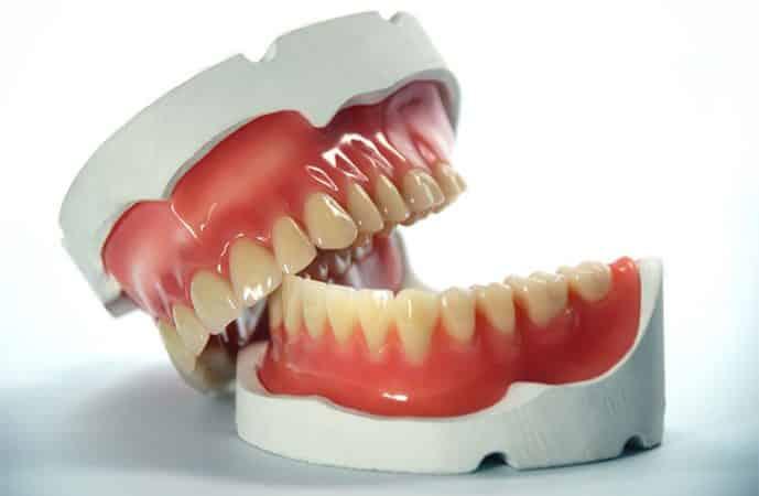 Kayıp Dişler Yerine Protez Diş