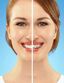 Şeffaf Diş Teli Uygulaması
