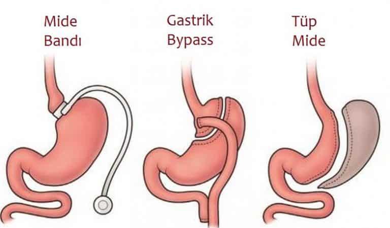 Obezite ve Tüp Mide Ameliyatı