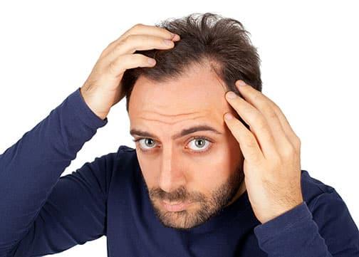 erkeklerde-saç-dökülmesi