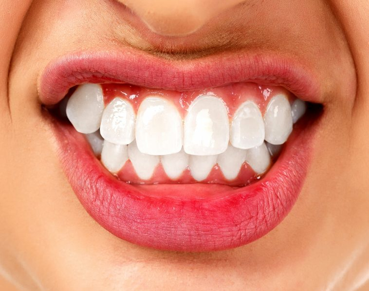 Bruksizm Nedir, Neden Olur? – Diş Sıkmanın En İyi Tedavisi