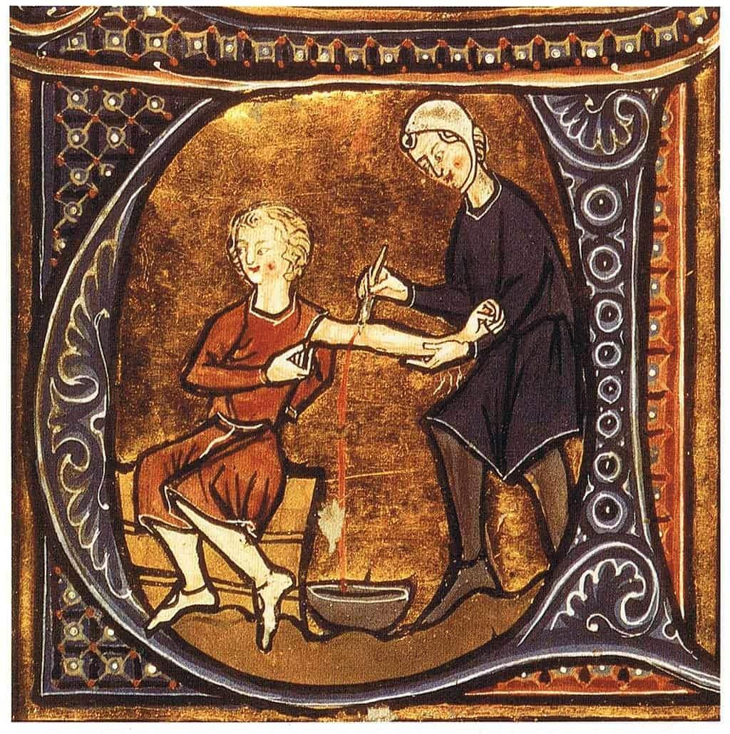 Ortaçağ'da Akıl Almaz Acı Verici Tedavi Yöntemleri